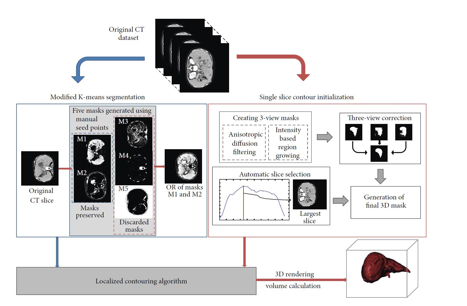 hight resolution of steps for liver segmentation and volume calculation modular block diagram