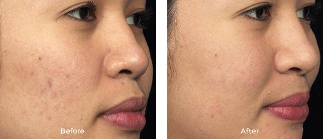 Miami Center For Dermatology Cosmetic Dermatology Miami Fraxel
