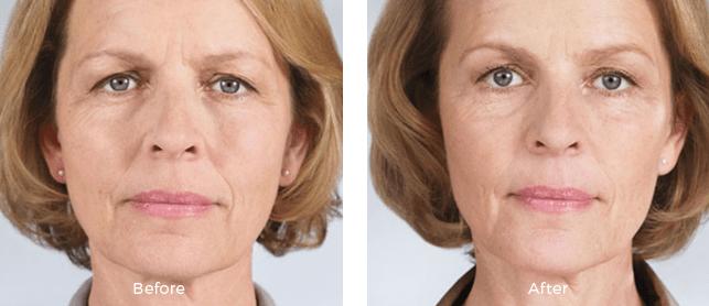 Miami Center For Dermatology Cosmetic Dermatology Sculptra
