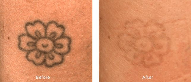 Miami center for dermatology cosmetic dermatology laser for Tattoo removal maryland