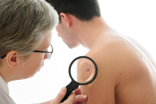 Skin Neoplasms Treatment Miami