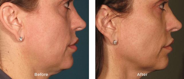 Miami Center For Dermatology Cosmetic Dermatology Miami Ultherapy