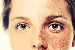 Skin-Cancer-Dermatology