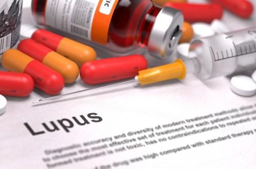 Lupus , Collagen Vascular Disease