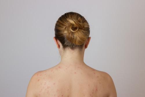 Pityriasis Rosea Skin Condition