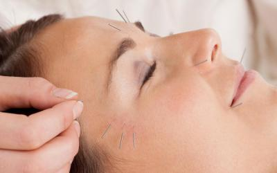 Micro Needling in Kendall