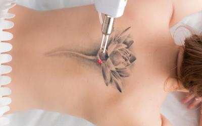 Laser Tattoo Removal System