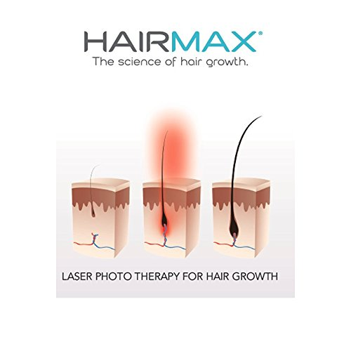 HairMax Ultima 12 LaserComb Hair Growth Device. Stimulates Hair Growth, Reverses Thinning, Regrows Denser, Fuller Hair. Targeted hair loss treatment. Light, Portable, FDA Cleared4
