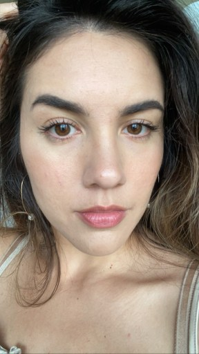how to get rid of acne scars with microneedling