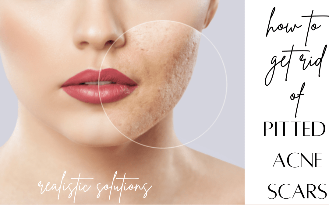 How To Get Rid of Pitted Acne Scars [Realistic Ways]