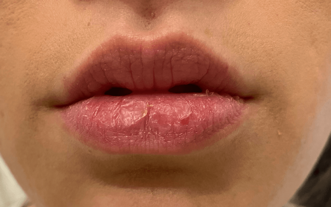 I Still Have Dry Lips From Accutane … 12 Years Later