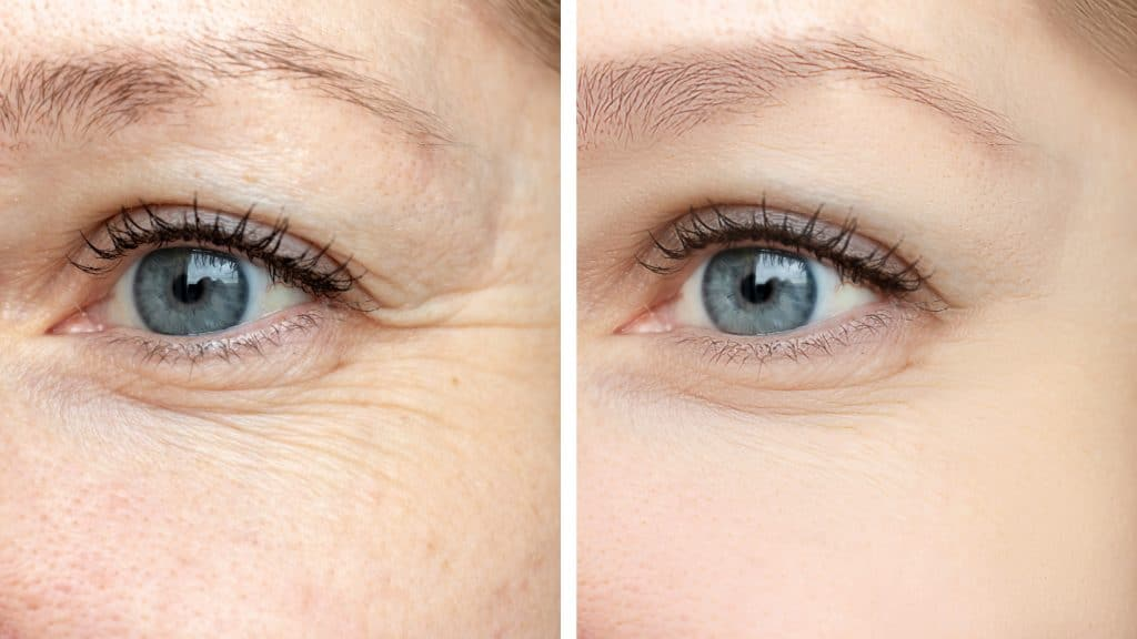Contorno Ocular Global Eyecon