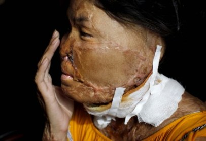 Acid Violence A Growing Threat In Cambodia