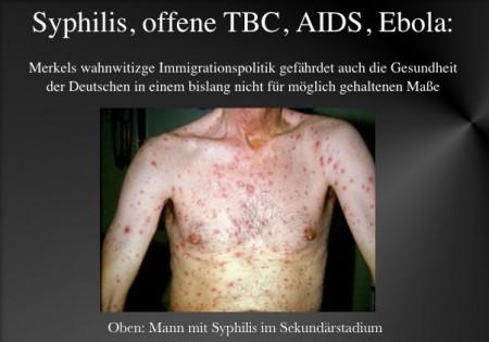 Migranten Krankheiten