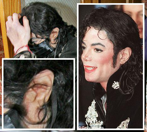 michael-jacksons-mangled-ear