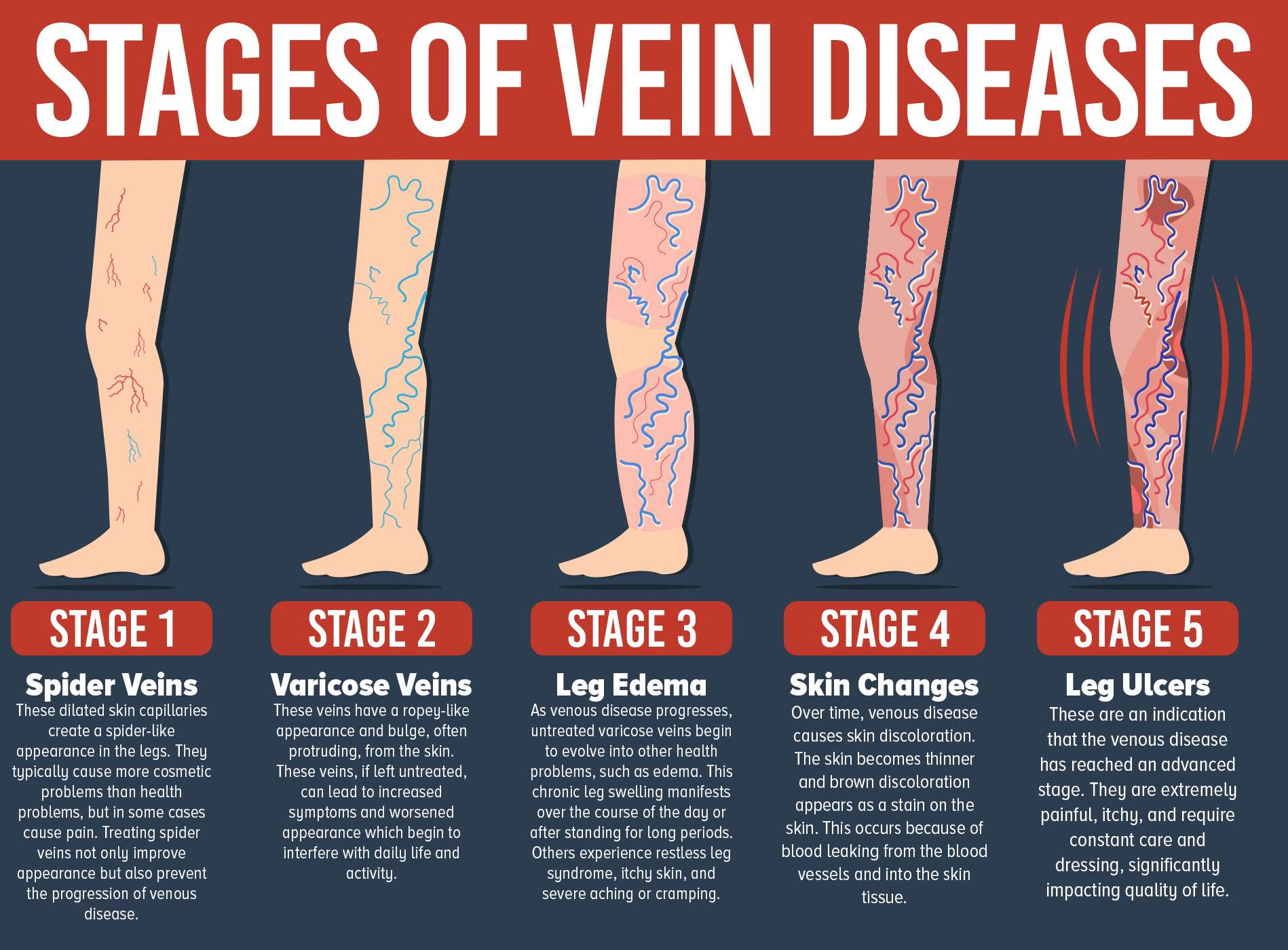 Don T Let Varicose Veins Get You Down Treatment Is