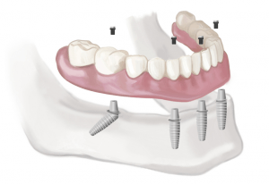 All On 4 Dental Implants: Are They Right For You?