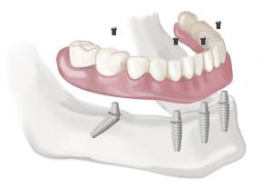 dental implants, dental implants nyc, mini dental implants, dental mini implants,