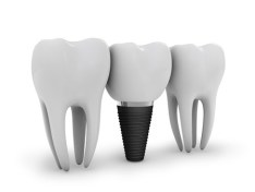 dental implant, is implant dentistry expensive, michael sinkin, nyc dentist, nyc implant dentist