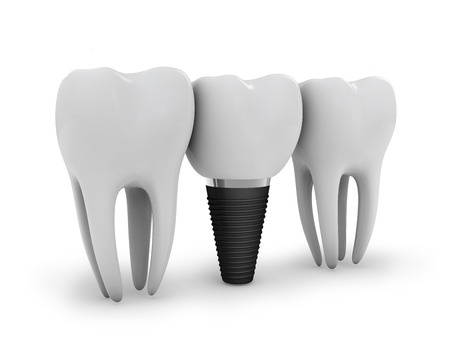 The Cost of Dental Implants vs. Other Tooth Replacement Procedures