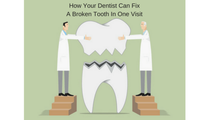 How Your Dentist Can Fix A Broken Tooth In One Visit Michael Sinkin