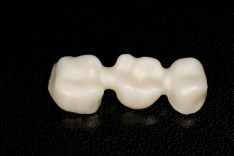 three-unit bridge, michael sinkin, nyc dentist, nyc implant dentist