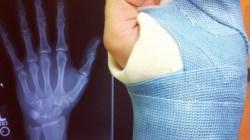 How to Break Bones Acting
