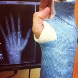 Broke my hand acting. Minneapolis, MN, USA.