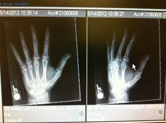 left hand x-ray
