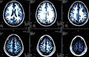 Brain Injury Accident