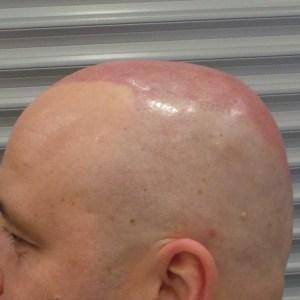 Tak wygląda głowa 1-2 dni po zabiegu.