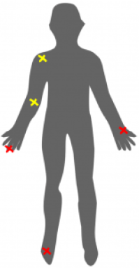 Silhouette with injury locations