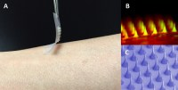Worlds first smart insulin patch could replace painful ...