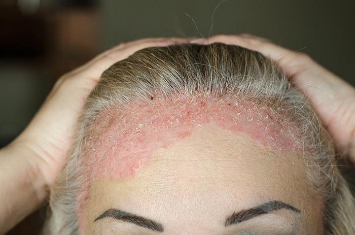 Michigan Dermatology Institute   Michigan Dermatology ...