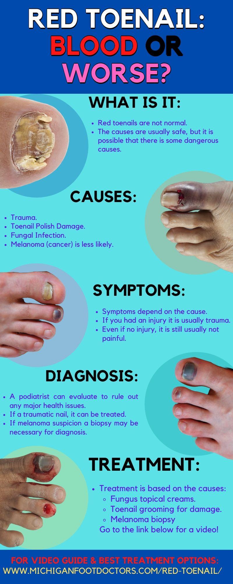 Thick White Stuff Under Toenail : thick, white, stuff, under, toenail, Under, Toenail, [Causes,, Remedies, Treatment]