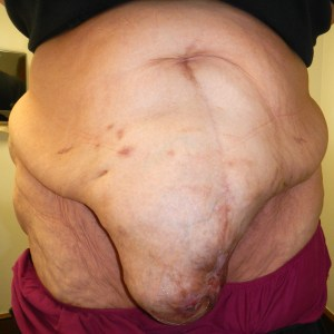 Ventral hernia before