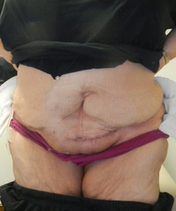 Ventral hernia after