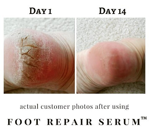New Footcare Products at Meijers – Product Promotion
