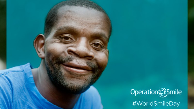 Spread More Smiles: Join Operation Smile in the Celebration of #WorldSmileDay