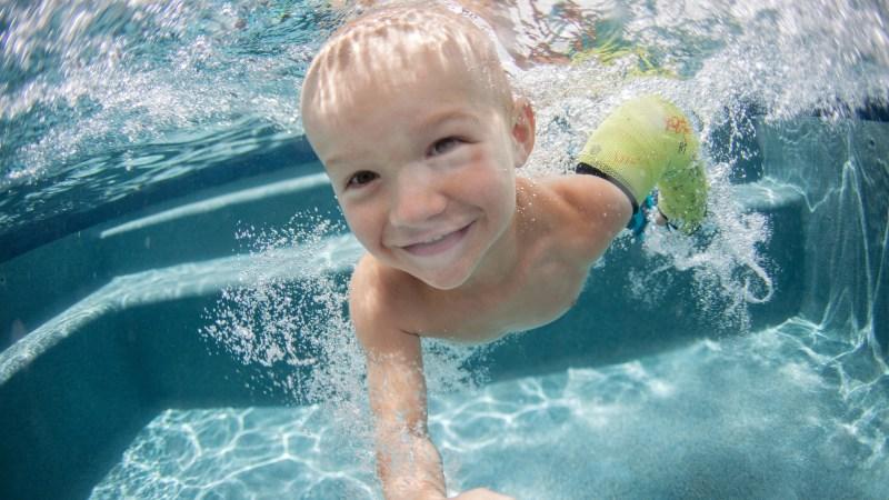 Children's Hospital of Michigan Offers Waterproof Cast Liners for Broken Bones