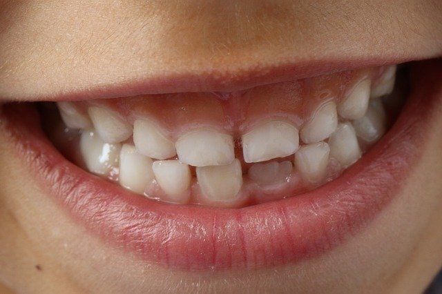 9 Reasons Why Your Kid May Need Early Orthodontic Treatment