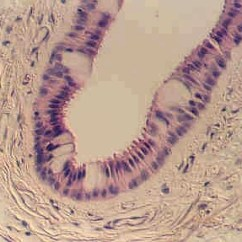 Stratified Columnar Epithelium Diagram 2000 Chevy Blazer Ignition Switch Wiring Or Cuboidal Microanatomy Web Atlas Is Rare One Place You Can Find It In The Largest Ducts Of Salivary Glands Parotid Submandibular Etc