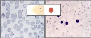 P. falciparum trophozoite stage in thick (right) and thin (left) smear.