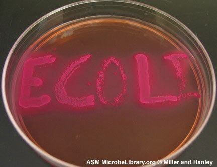 Bacterial Culture Media Their Ph Indicators And Color Of Bacterial