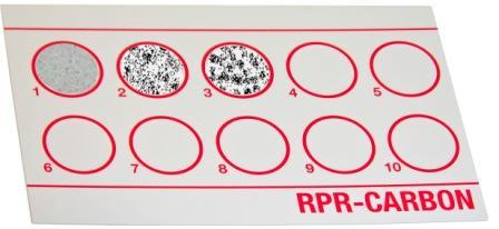 Rapid Plasma Reagin (RPR) Test: Principle, Procedure and