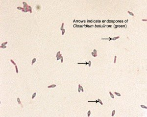 Spore of Clostridium botulinum Source: ASM