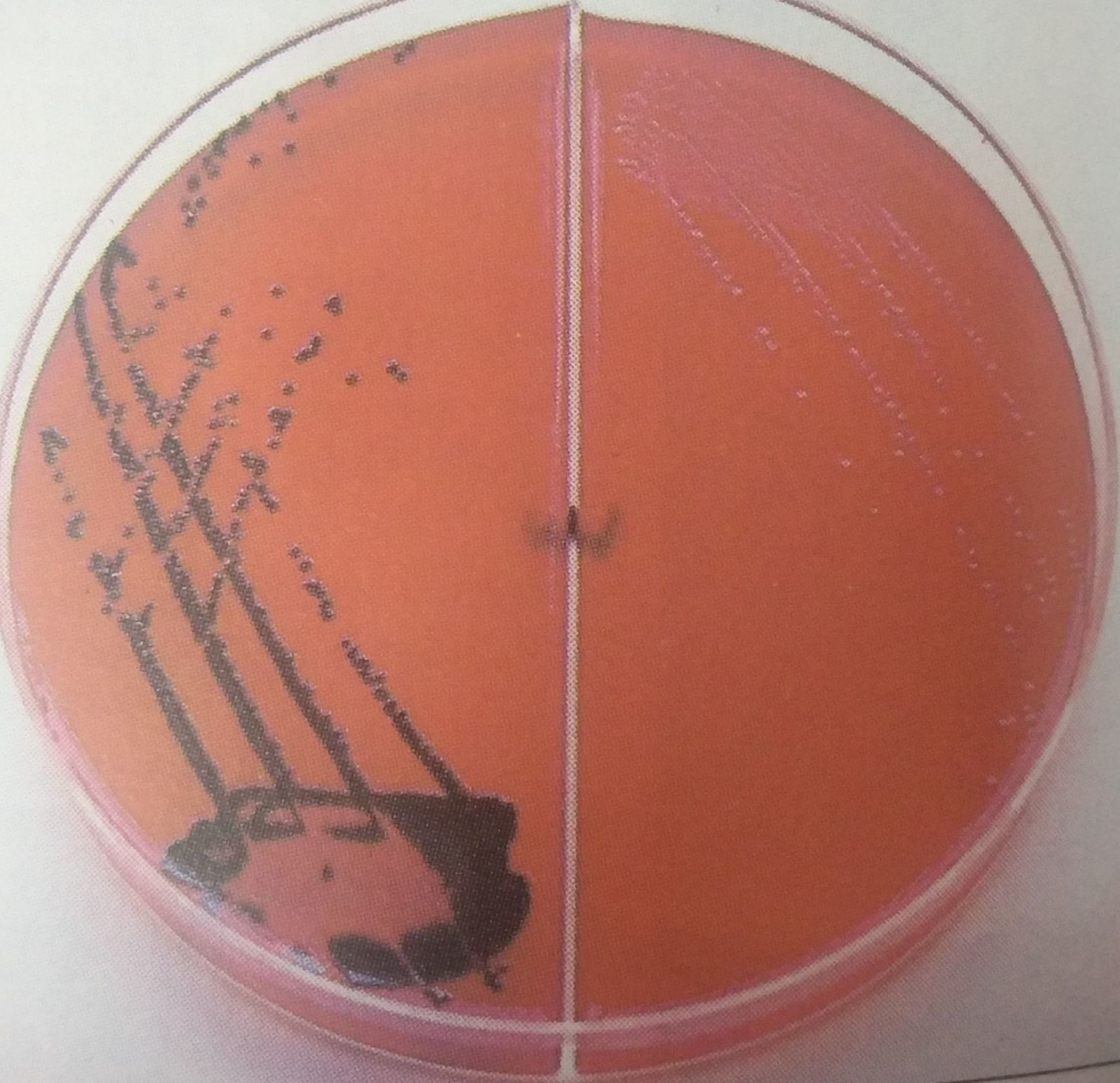Xylose Lysine Deoxycholate Xld Agar Composition