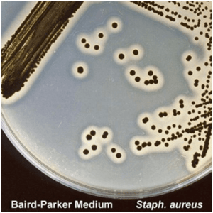 Colonies of Staphylococcus aureus in Baird Parker Agar Medium