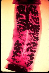 Gravid proglotids of T solium