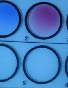 Widal test result sample showing bh positive in screening also principle procedure results interpretation rh microbeonline